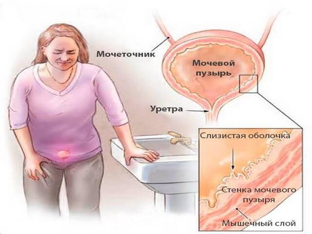 Лечение шеечного цистита форум