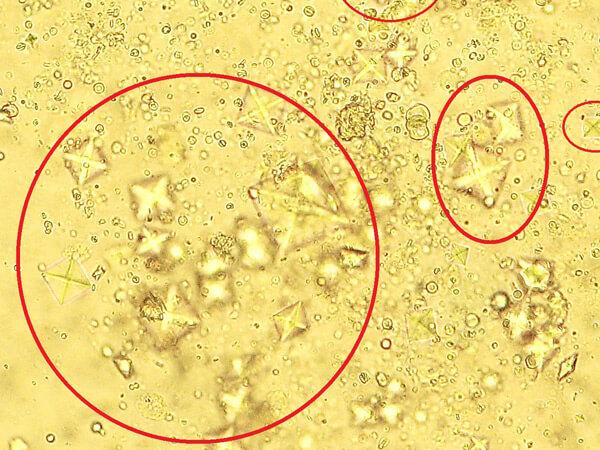 оксалаты под микроскопом