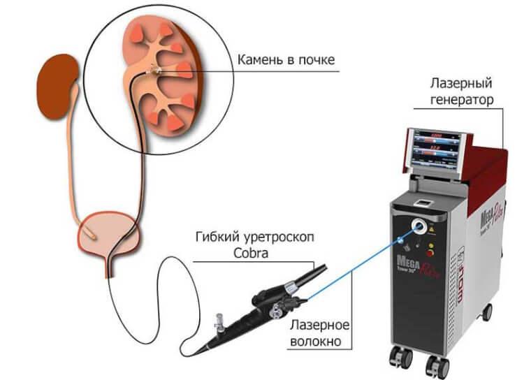 Литотрипсия