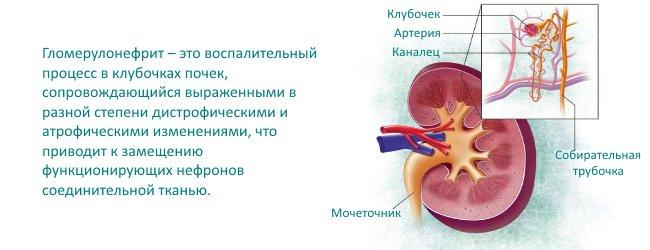 определение болезни