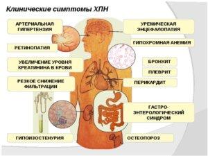 признаки болезни