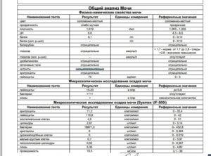 Таблица анализа мочи