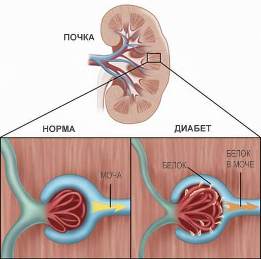 Диабетическая нефропатия схема