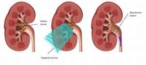 размельчение конкремента в органе
