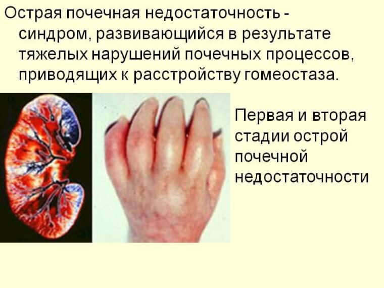 Острая почечная недостаточность: симптомы, лечение, патогенез