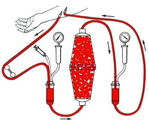 Гемосорбция крови