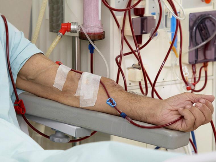 Процесс очищения крови