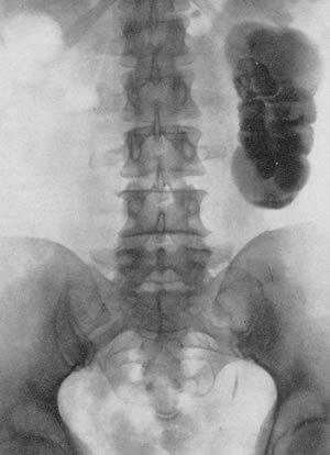 Туберкулез слева