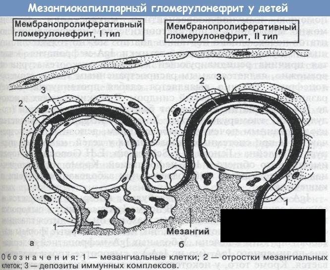 Мезангиопролиферативная форма