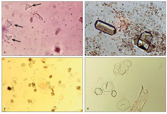 Виды оксалатов в моче