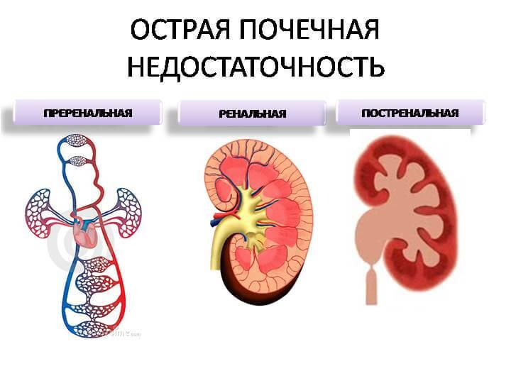 укажите симптомы характерные для хпн