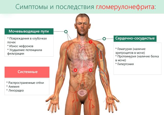 Гломерулонефрит симптомы и лечение: причины, профилактика