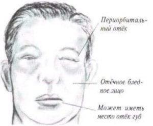 жидкость в тканях определенных мест тела