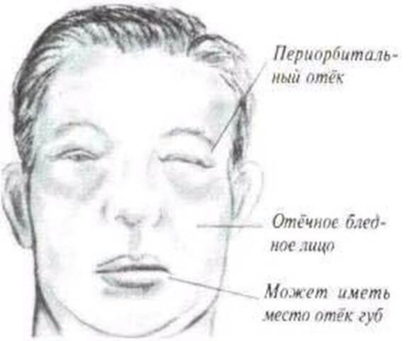 Причины отечности на лице