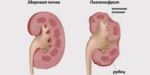 болезнь органа