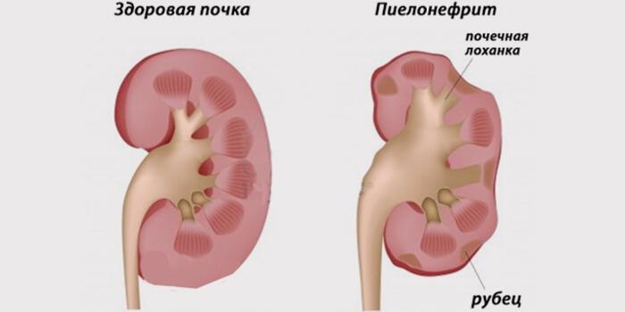 Курс упражнений при остеохондрозе
