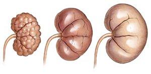 стадии болезни органа