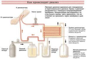 Как происходит гемодиализ