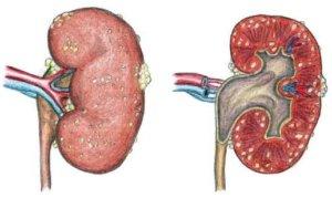 патология органа