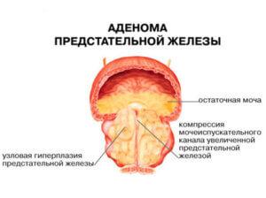 болезнь предстательной железы