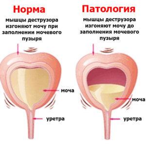 патология процесса в органе