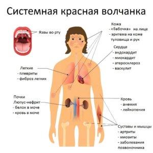 тяжелое заболевание