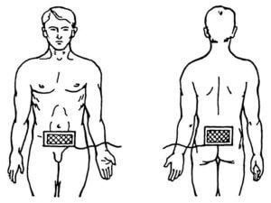 лечебная процедура