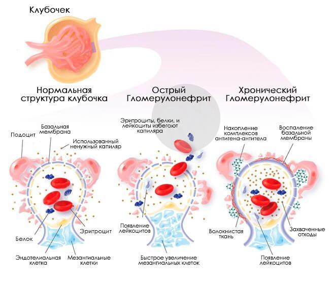 Гломерулонефрит и беременность реферат курсовая работа диплом  Гломерулонефрит и беременность реферат