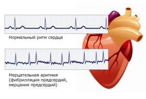 нарушение сердечного ритма