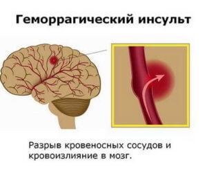 патология кровеносных сосудов мозга