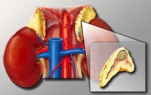 болезненное новообразование в органе