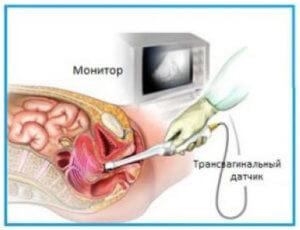ультразвуковое исследование органа